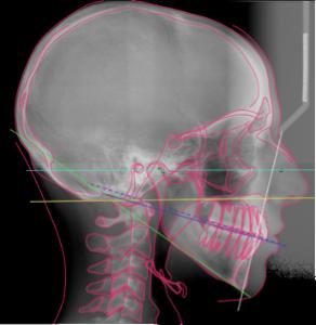 Corso-PP-Dental-Prof.-Sadao-Sato-Cefalometria-latero-laterale