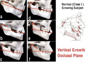 Corso-PP-DentalSadao-Sato-Crescita-verticale-e-relazione-con-il-piano-occlusale