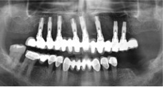 PP dental